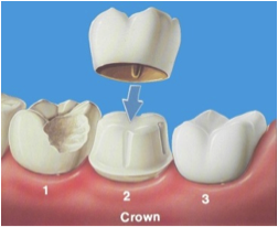 Dental-Crown-Miami