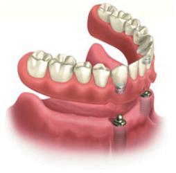 Implant-Overdentures-Dentist-Miami
