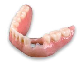 Over-Denture-Dentist-Miami