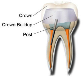 Root-Canal-Dentist-Miami-2