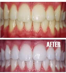 Teeth-Whitening-Before-After-Miami-Dentist