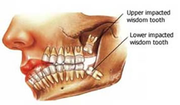 Wisdom-Teeth-Dentist